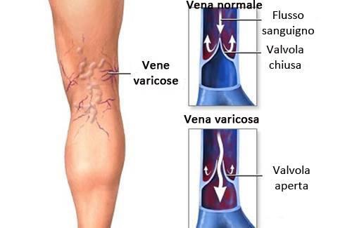 vene varicose come si presentano