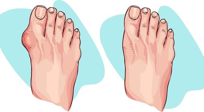 ossa sporgenti dei piedi